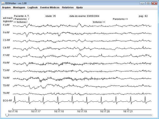 EEG-Holter