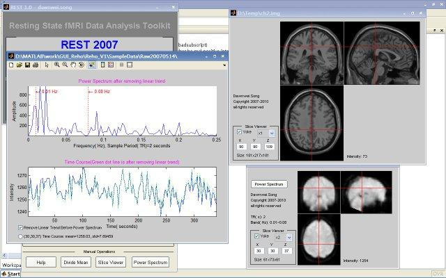 Resting state fMRI data analysis toolkit
